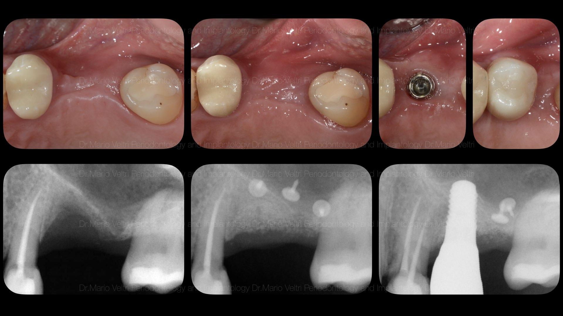 implant regen.008